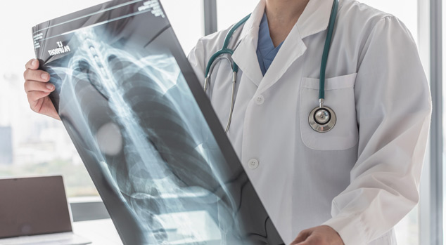 doctor checking the xray report